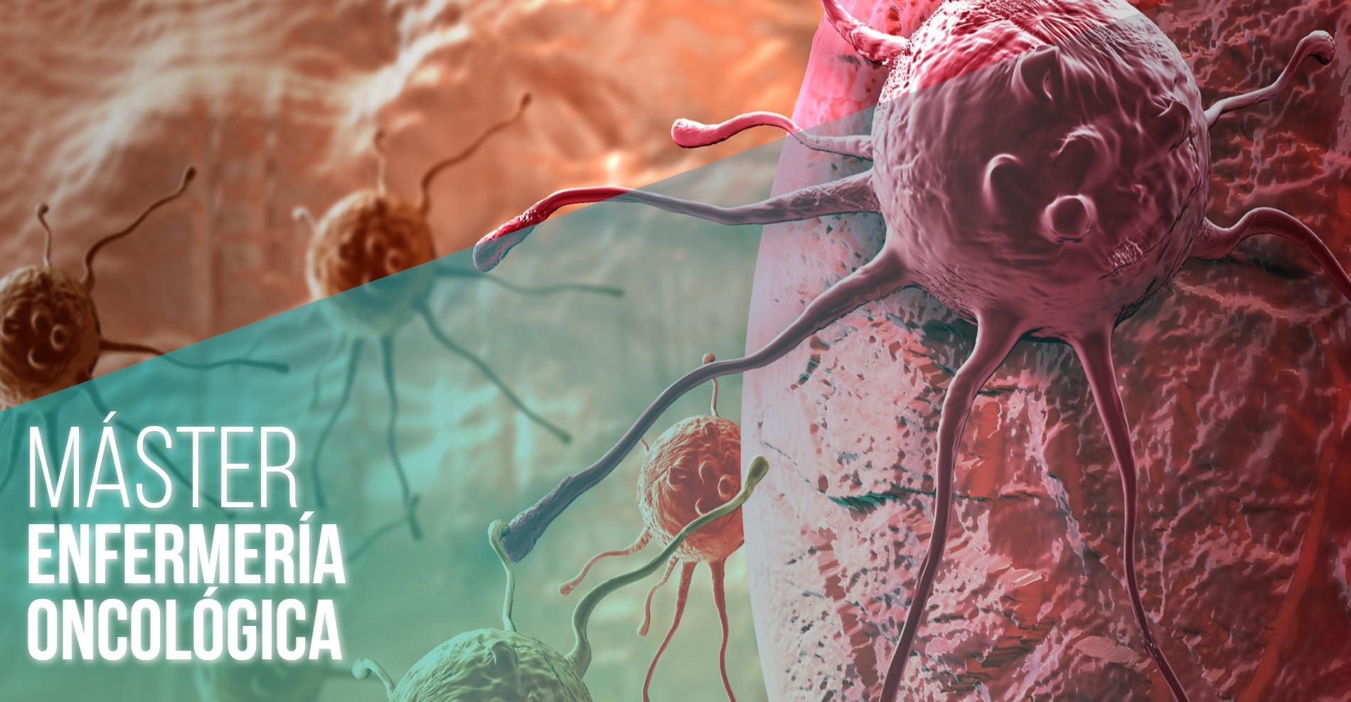 Desarrollo del perfil profesional en Enfermería Oncológica